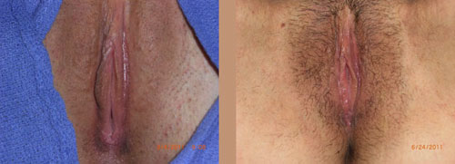 Female genitals shaved