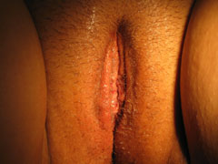 After Labiaplasty photo